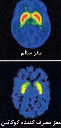 تاثیر-مواد-مخدر-بر-مغز